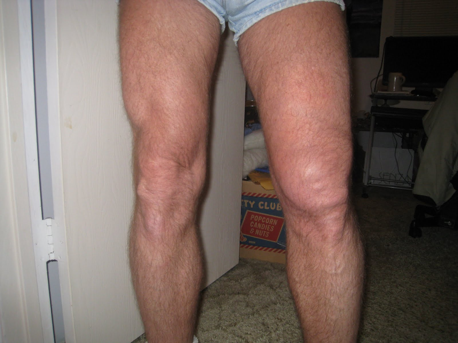 steroid injection site glute