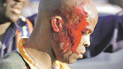 un muerto y diez heridos en partido amistoso sudafrica 2010