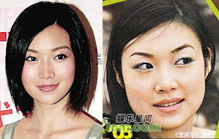 Tracy Ip Chui Chui Plastic Surgery