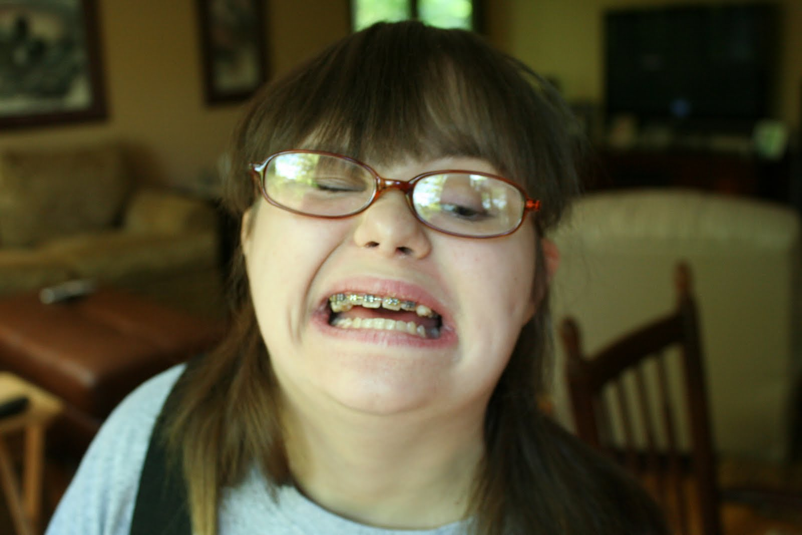 Emma Blackery Teeth The Image Kid Has It