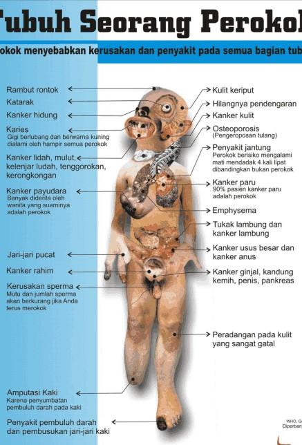 http://2.bp.blogspot.com/_QOodpxWtMaQ/S8sVT3rF6eI/AAAAAAAAAAM/Wyk1PaXoDCw/s1600/bahaya-merokok3.jpg