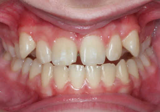 Gap Teeth Before And After. Pictures Of Teeth Before And