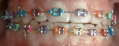 Rainbow Braces on skip counting by 2