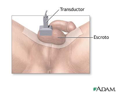 vasectomia efecto secundarios: