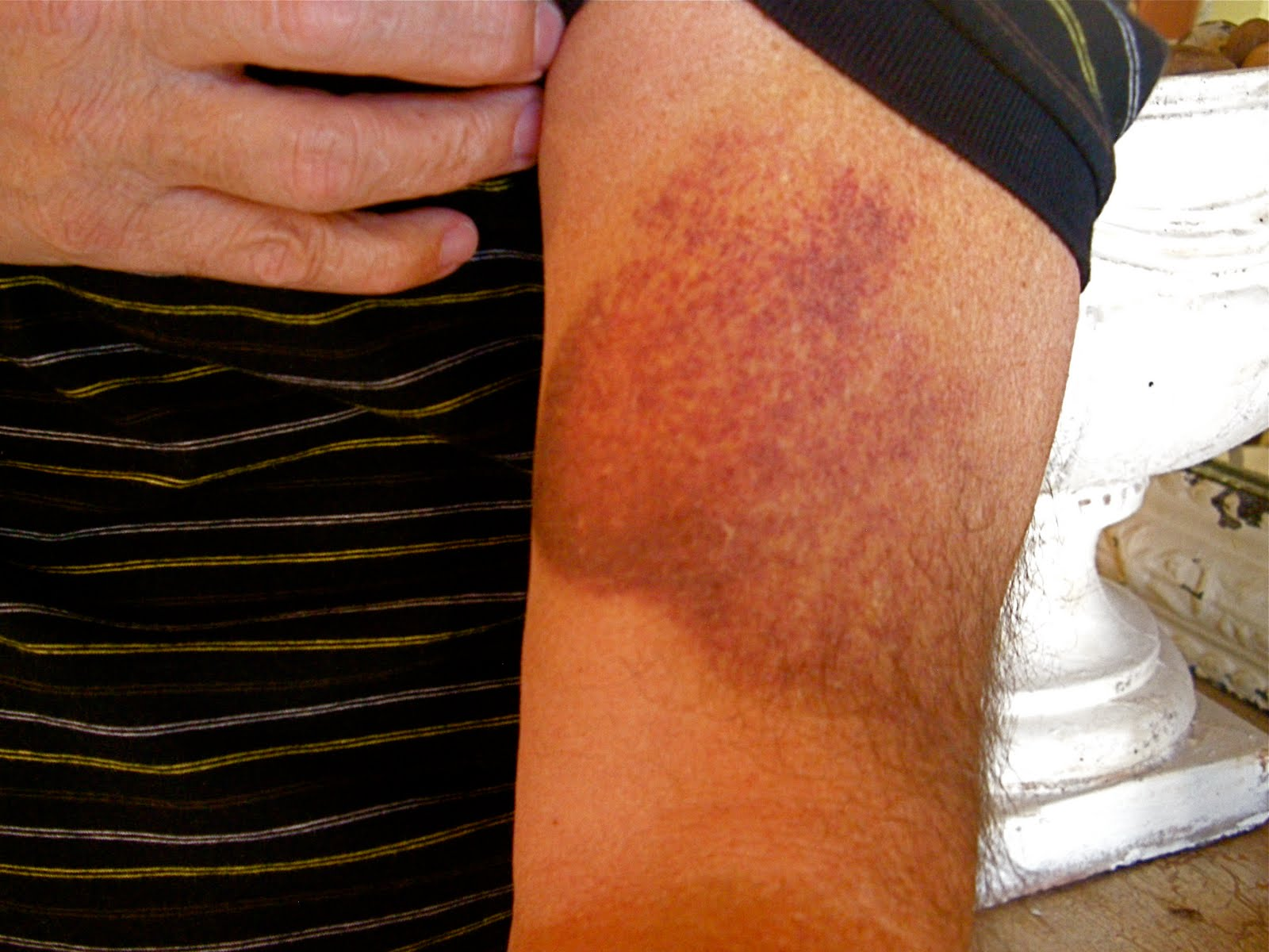 The gallery for --> Bruises On Upper Arm