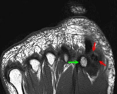 Sesamoid Bones: Normal and Abnormal - Radsource