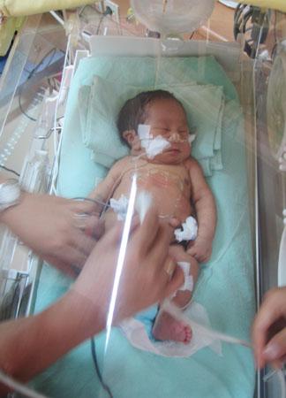 Inilah Foto Bayi Berkaki Empat dan Berpenis Dua yang La