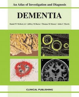 An Atlas of Investigation and Diagnosis Dementia