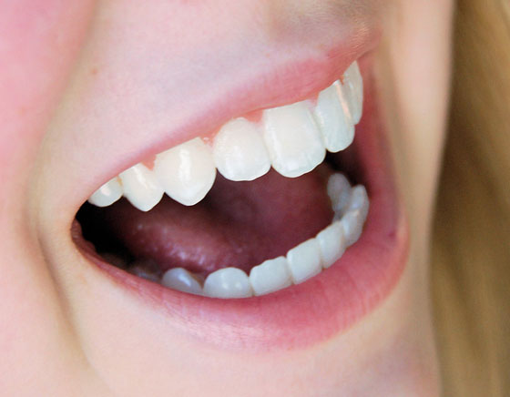 Toque Feminino Receitas Caseiras Para Clarear Os Dentes