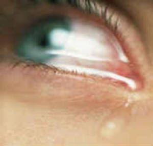 http://2.bp.blogspot.com/_RSdSHRnjJ-g/SqyWm14EeZI/AAAAAAAAAvw/O0vfW2OqMC8/s320/crying+eyes.jpg
