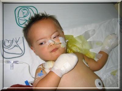 Maximilian, Down-Syndrom, nach Darmoperation und Darmdurchbruch