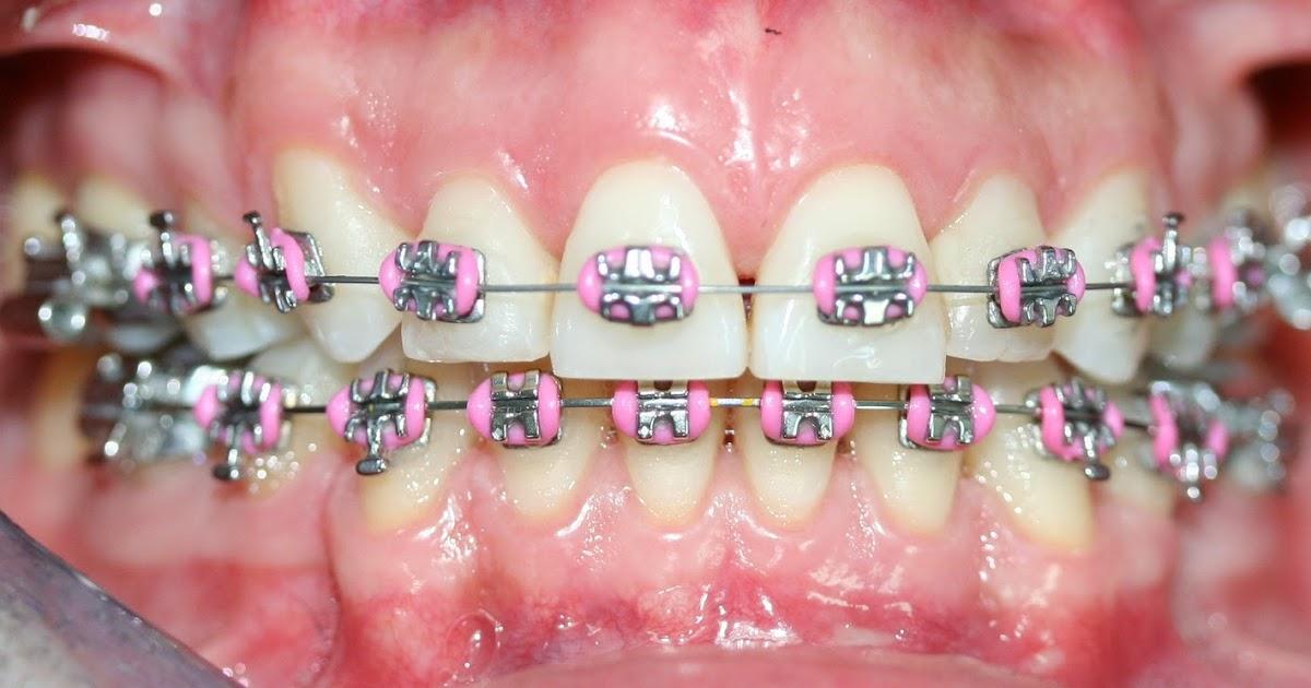 Tratamientos dentales ortodoncia tradicional for W de porter ortodoncia