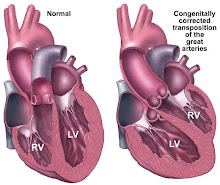 Diagram of Connie's Heart