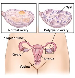 ... the problem is to loose your weight in order to get pregnant with PCOS.
