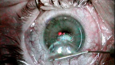 lasik_eye_surgery_secret