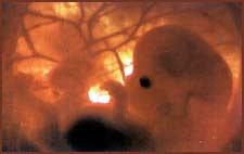 Imagen de un feto