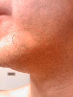 vitiligo so sehen meine vitiligo flecken aus gesicht. Black Bedroom Furniture Sets. Home Design Ideas