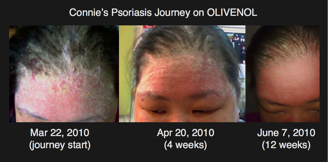 This blog post is a result of surveying 275 people living with psoriasis 2