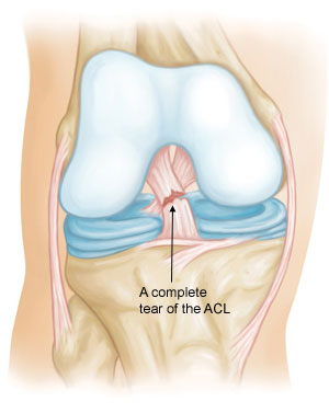 Dr Knight 39 S Insights Hyperextension Acl Tear