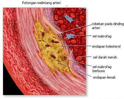 Potongan melintang arteri