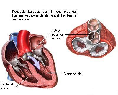 Regurgitasi katup aorta