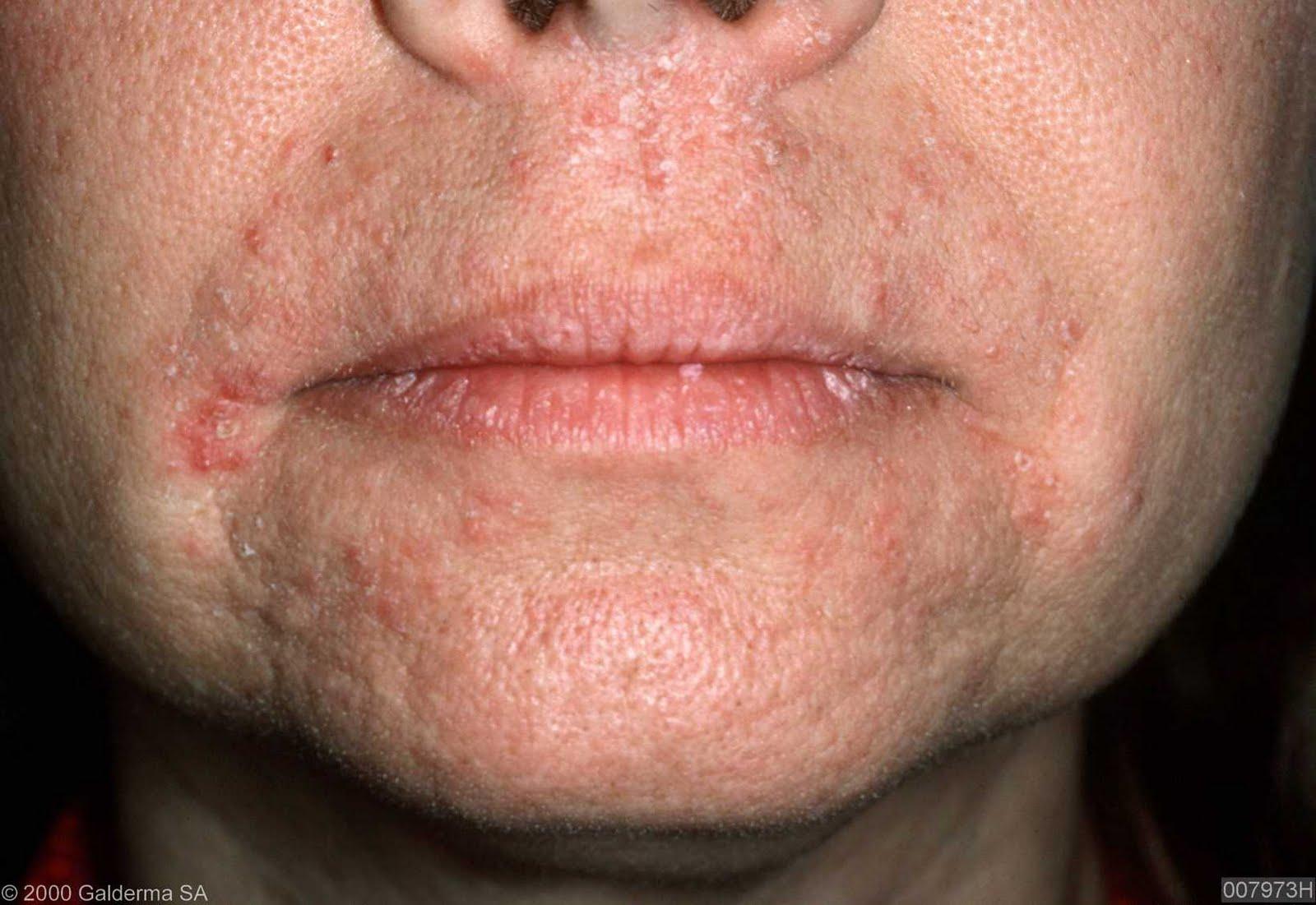 Mild Perioral Dermatitis Lips pictures of perioral d...