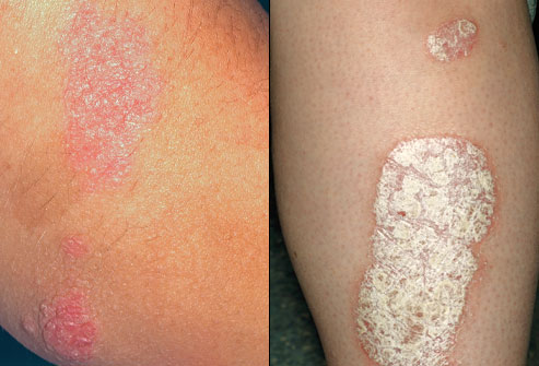 where does eczema usually occur