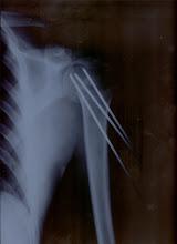 Snowboard che entra nell'ossa!!