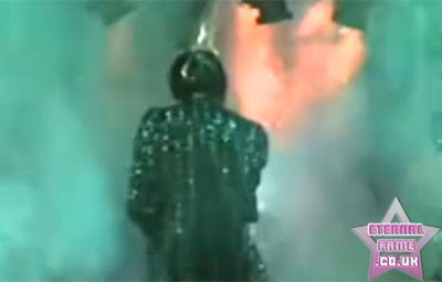 IMAGE: Michael Jackson's hair on fire