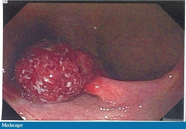 sangrado anal. Un gran pólipo rectal friable se encontró como fuente de ...