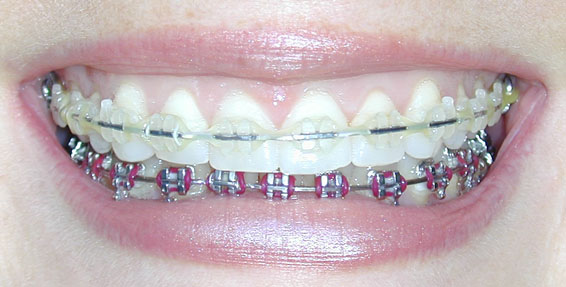Before And After Pics Of Braces. tattoo Before and After Before