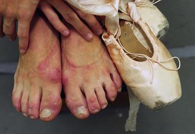 "TYWKIWDBI (""Tai-Wiki-Widbee""): The feet of a ballerina Scarlett Johansson Herpes"