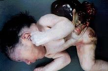 Malformaciones causadas por Talidomida