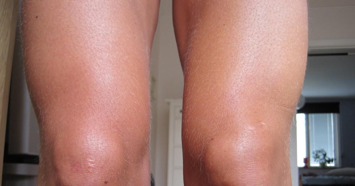 slemsäcksinflammation i knät