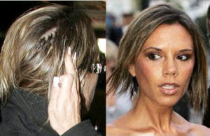 Going going gone outing bald celebrities posh spice now that she has shorter hair it is harder to hide the bald spots see for yourself pmusecretfo Images