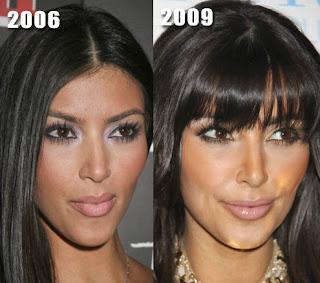 plastic surgery is good essay