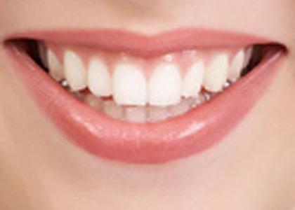 Bagaimana Cara Memutihkan Gigi Secara Alami Penting Panas Perlu