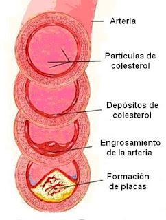Formación del ateroma