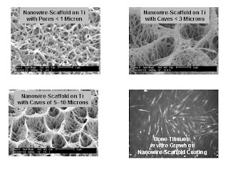 These images show the titanium scaffolding with different pore sizes, plus bone tissue growth on the titanium scaffolding. Images courtesy of Z. Ryan Tian.