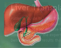 Liver Transplant In India Information Guide.
