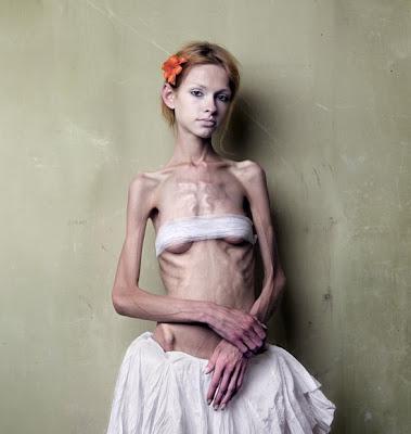 Really Skinny People