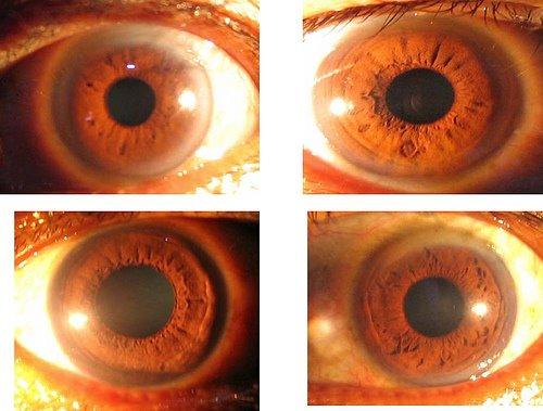 Kaedah Iridologi (Cara Mengesan Penyakit Melalui Mata Anda)