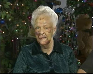Mrs. Vinge - NBC News. 75 year old Grandma Beaten by Teenagers