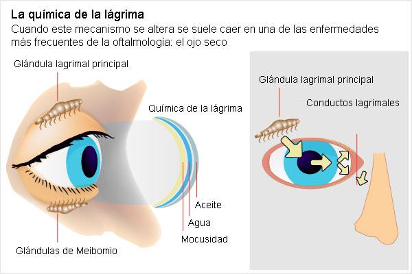 causa de ojo seco: