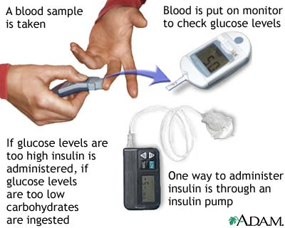 how to stimulate pancreas to produce insulin