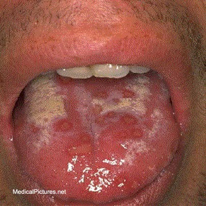 how to get rid of a fat lip from a cold sore
