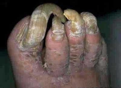 nail, kuku kaki