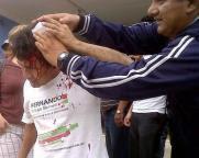 LESIONADO SINDICALIZADO TRES PODERES DE CANDELARIA EN TENABO. 9FEB2011.