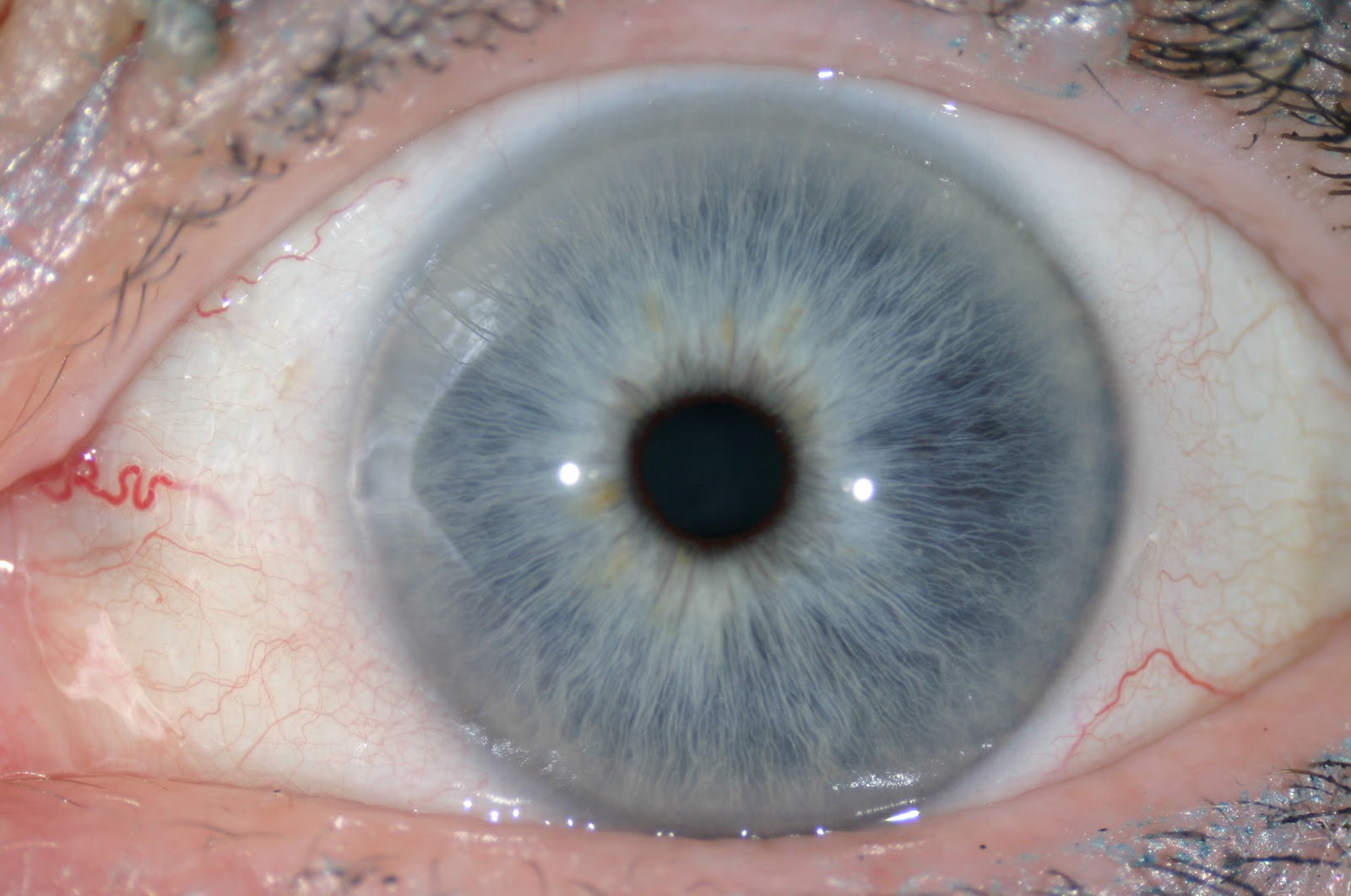Eye Colors Pale Blue Eyes With White Lines