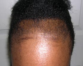 Traction Alopecia: The hairstyles which can cause hair ...